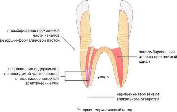 Пломбирование канала зуба, или корневых каналов, какие методы существуют?