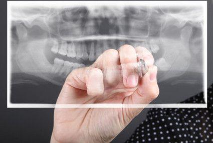 Установка пластин на зубы детям